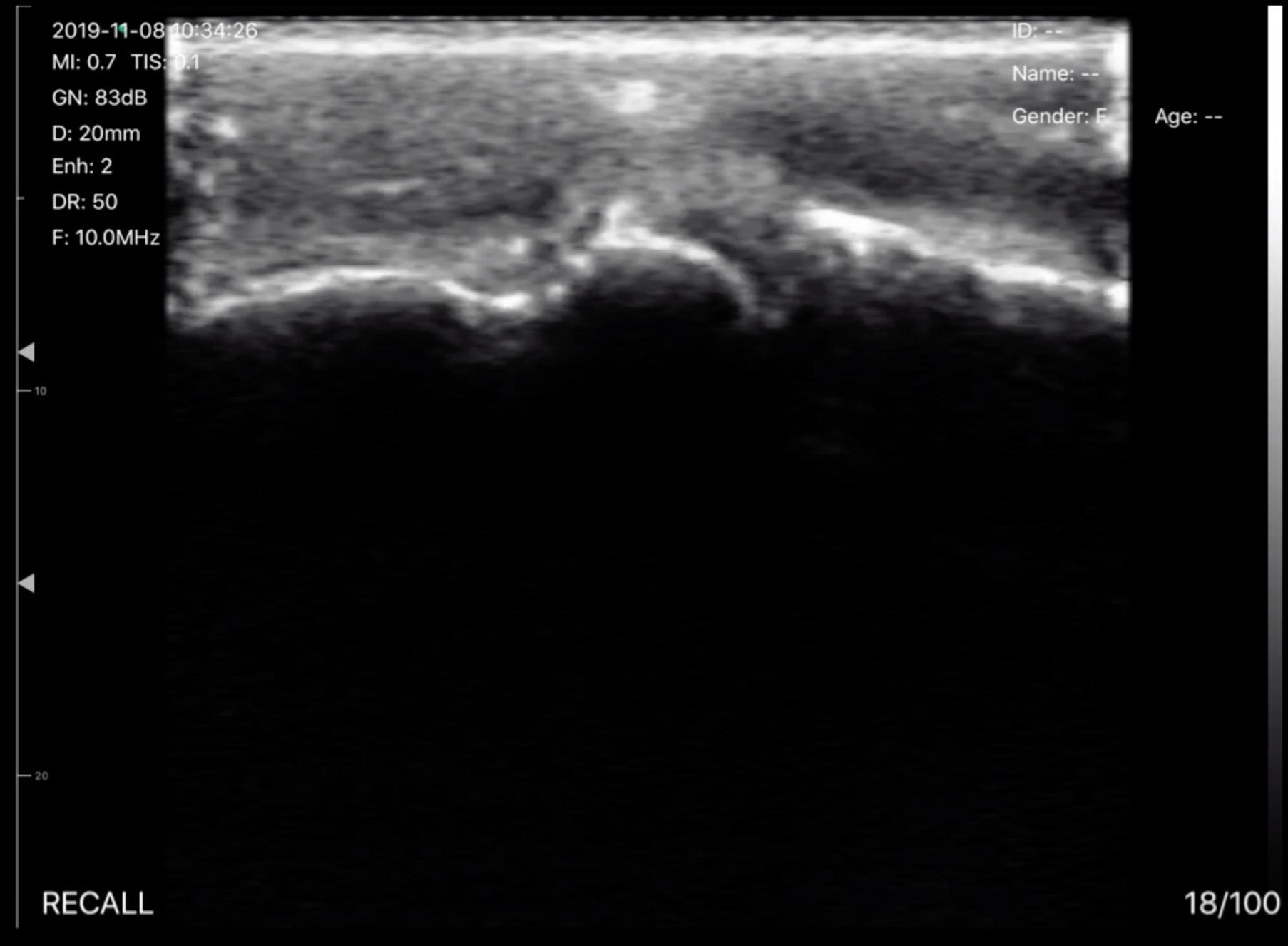 L5N_Metacarpal-Joint