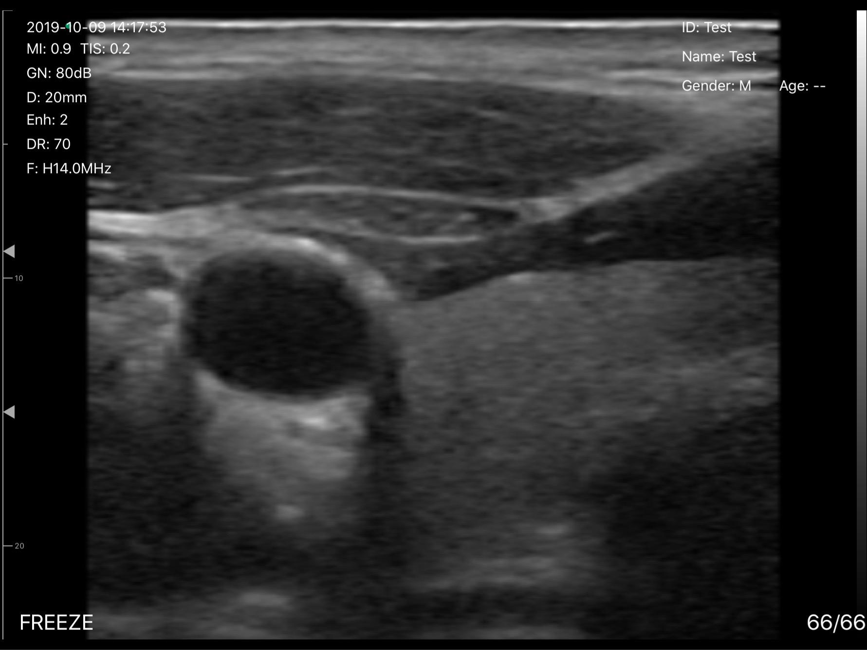 UProbe-L5PC-Transverse-View-of-Thyroid