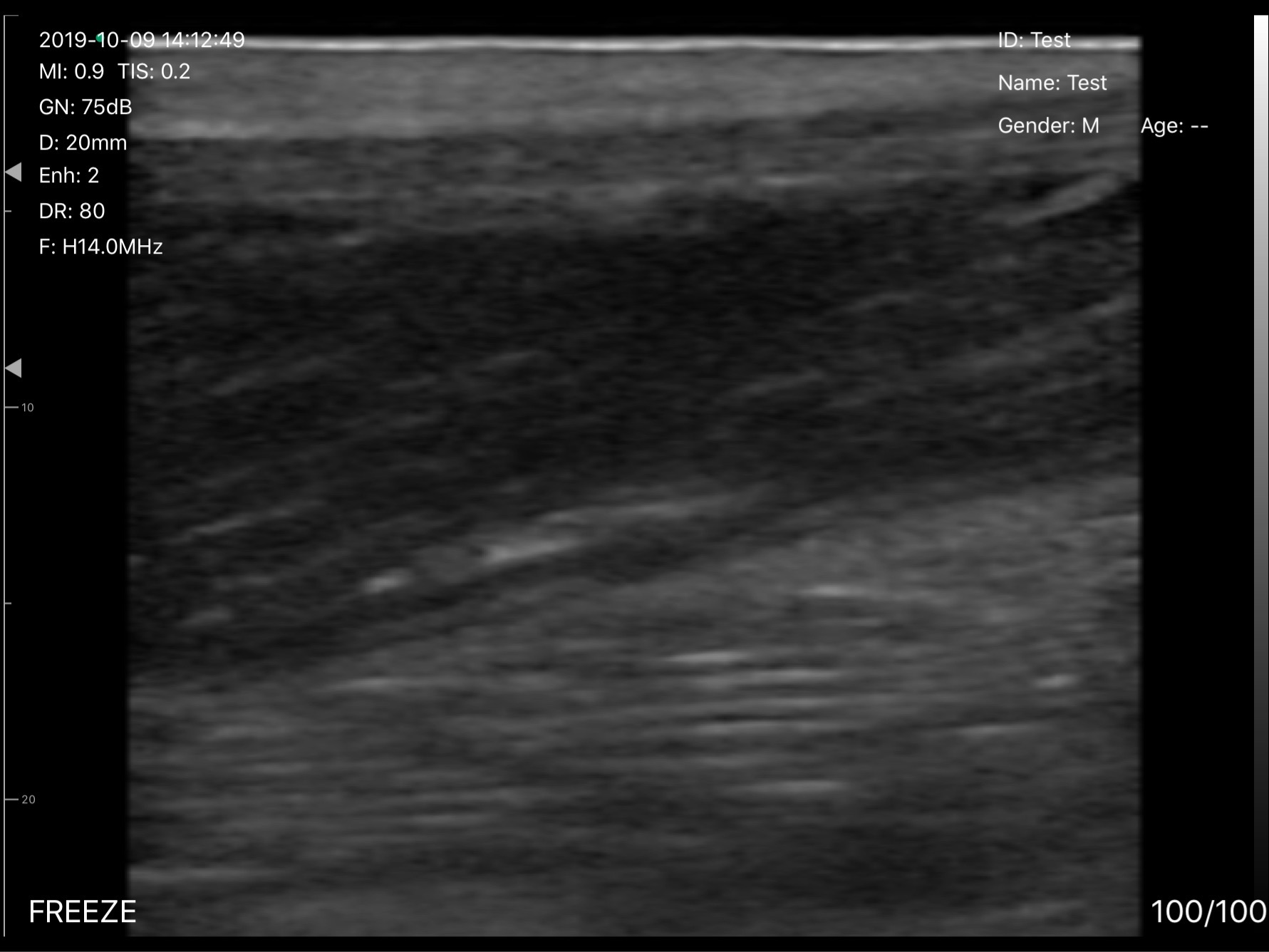 UProbe-L5PC-UProbe-L5PC-Achilles-Tendon-from-muscle-tendinous-junction