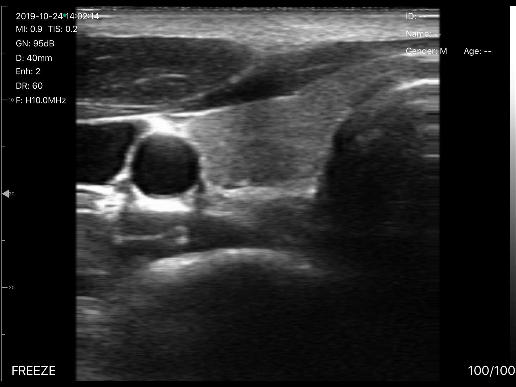 UProbe-L5_Thyroid_r01